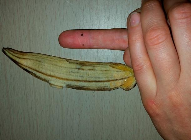 Curing warts with banana isla